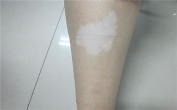 男性四肢白斑是什么病