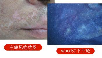 伍德镜下白斑淡蓝白色斑片与正常皮肤界限模糊