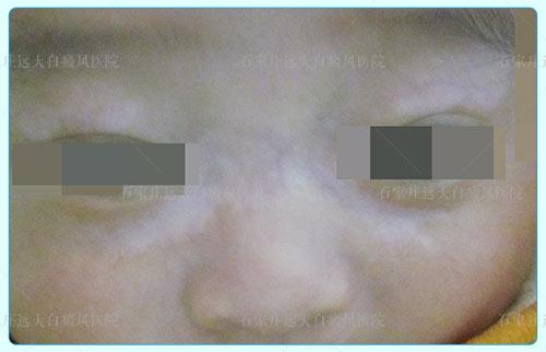 五个月婴儿皮肤上有白斑