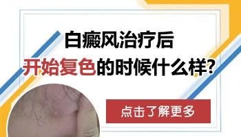 白癜风好转过程实例图 白斑治疗多久会有效果