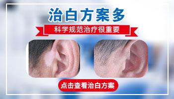 白斑长在嘴角和脖子上指甲盖那么大是什么