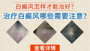 眉毛部位的<a href=https://www.zhjianfa.com/zhiliao/ target=_blank class=infotextkey>白癜风治疗</a>应该注意什么