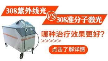 308紫外线仪器可以治疗白癜风吗