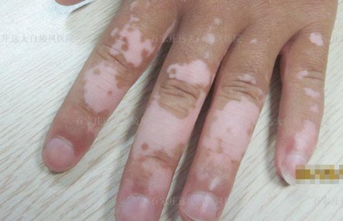 手背淡白色白斑不疼不痒两个月了是什么