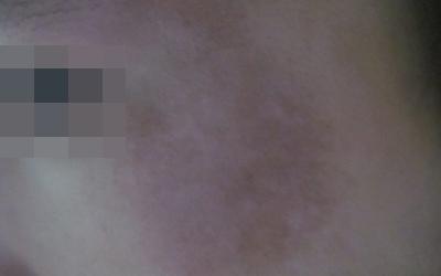 脸颊两侧瓷白色的白点是什么
