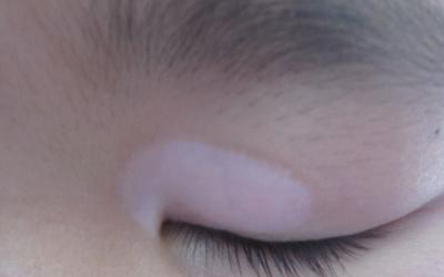 眼皮上有一小块白斑怎么回事