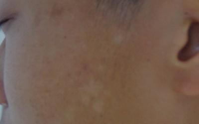 白癜风长在脸上好治吗