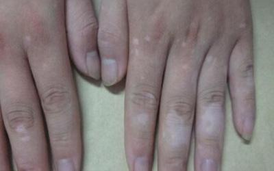 手指上长白色的小点点图片