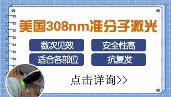 <a href=https://www.zhjianfa.com/ target=_blank class=infotextkey>石家庄白癜风医院</a>有308激光吗