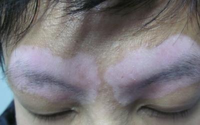 眉毛周围的肤色发白是什么原因