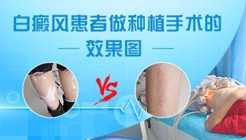 稳定期白癜风植皮手术过程是怎样的