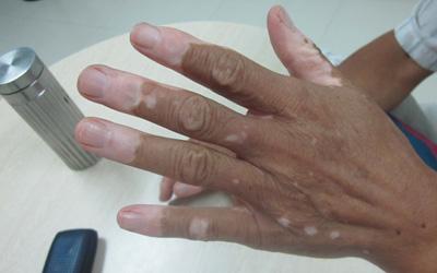 手指指尖白癜风在扩散怎么治