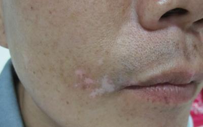 嘴角淡白色白斑是不是白癜风