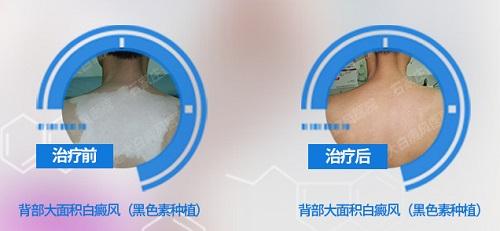 表皮移植手术治疗白癜风的价格明细