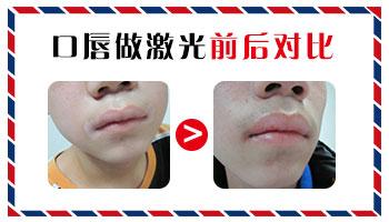 早期嘴唇白癜风的症状有哪些
