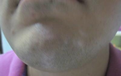 发现下巴有一块发白像是白癜风