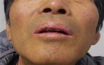 嘴唇白癜风最早期的图片
