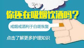 男性初期白癜风照了激光抽烟有影响吗