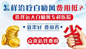 河北<a href=https://www.zhjianfa.com/ target=_blank class=infotextkey>白癜风医院</a>治疗白斑的费用是多少