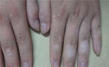 手指上有白块儿是不是白癜风