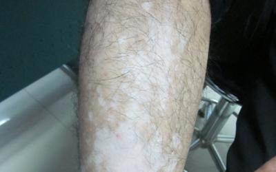 腿上有块皮肤很白越来越大怎么回事