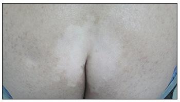 肛门周围白癜风光疗仪照射几秒
