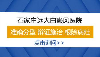 河北邯郸的白癜风医院