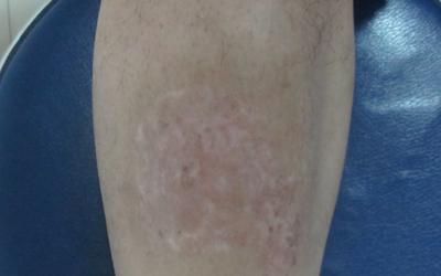 小腿上长密密麻麻的白点是什么原因