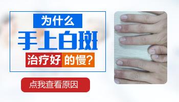 32岁男性手上有白斑用什么方法治