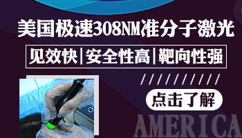 美国308激光能治疗白斑吗