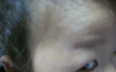 孩子脸上长白癜风图片
