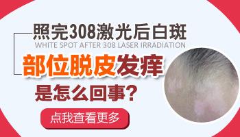308激光照射后有发红脱皮现象怎么回事