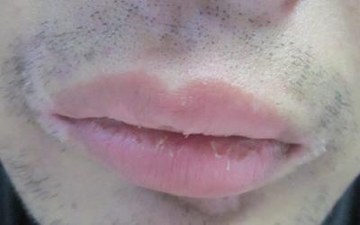 嘴唇周围白一圈的原因