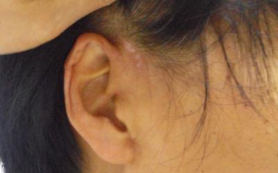 女孩耳朵后面出现白斑