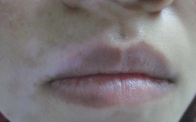 白癜风嘴唇上早期图片