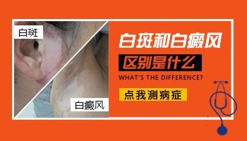 白色糠疹和白癜风白斑区别