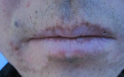 嘴巴边上的白癜风越来越多还变大了是怎么了
