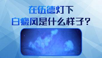 <a href=https://www.zhjianfa.com/ertongbaifeng/ target=_blank class=infotextkey>儿童白癜风</a>伍德灯照出来结果是怎样的
