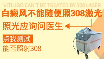 治疗初期白斑可以用308准分子激光吗