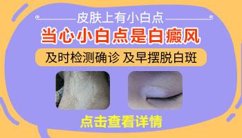 耳朵白斑图片 如何判断白斑是不是白癜风