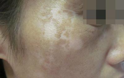 脸上皮肤颜色不均匀发白图片