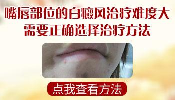 青少年唇部长白癜风图片白癜风能治好吗