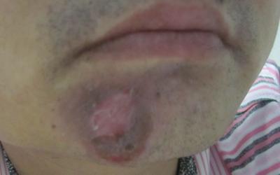 下巴有一块白白的是怎么了