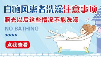 照完308后白癜风患者多久可以洗澡