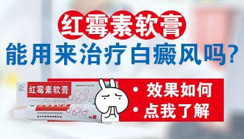红霉素软膏可以治白癜风吗