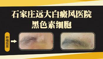 白癜风植皮手术治疗前后图