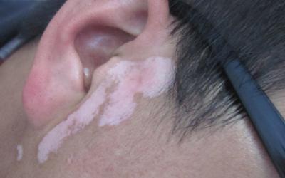 耳朵旁边发白是怎么了