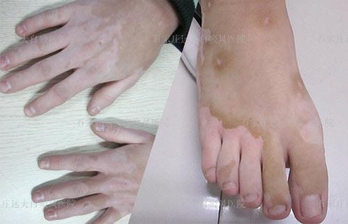 手脚白癜风有一年了其他部位又长新的怎么治