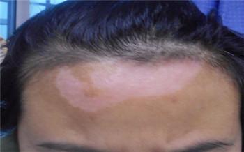 额头发际线位置白了一块是不是白癜风
