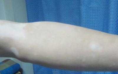 小孩手臂上长有一块块白的是怎么了